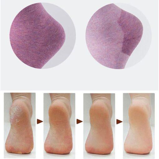 1 Pair Silicone Moisturizing Gel Heel Socks Repair Cracked Foot Dry Skin Care Protector Tool Treatment 5